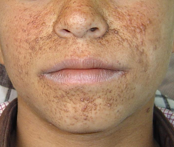 Pictures of Skin Diseases and Problems - Angiofibroma